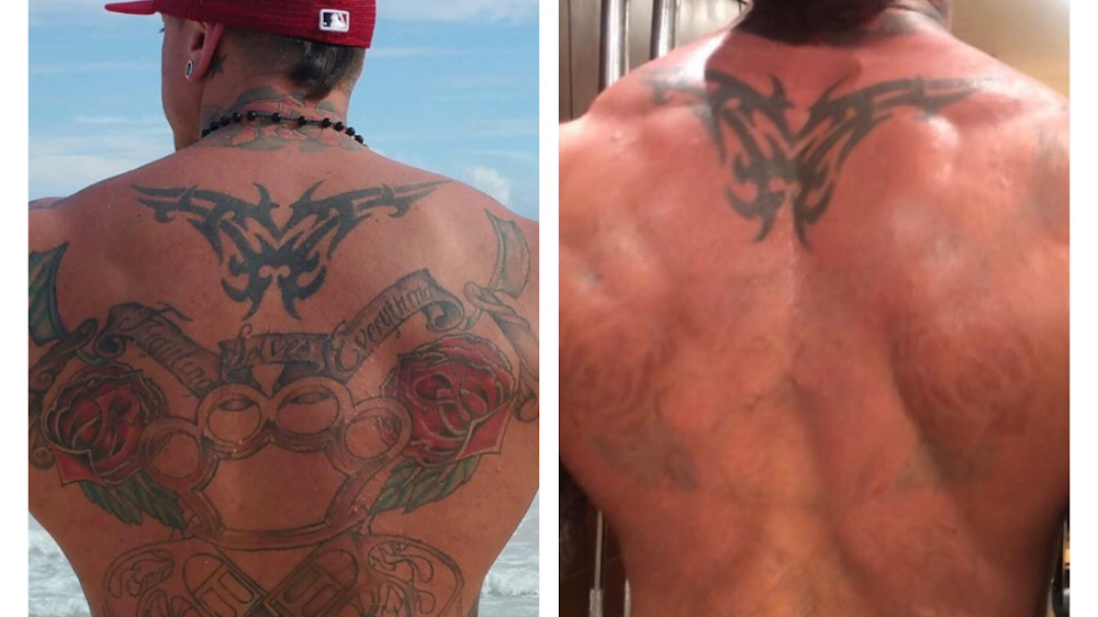 Clear Out Ink Laser Tattoo Removal
