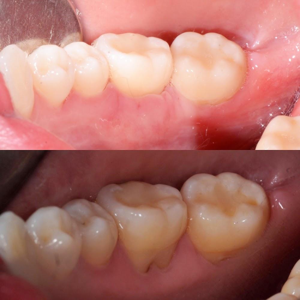 Ed De Andrade : Anthem Periodontics and Dental Implants